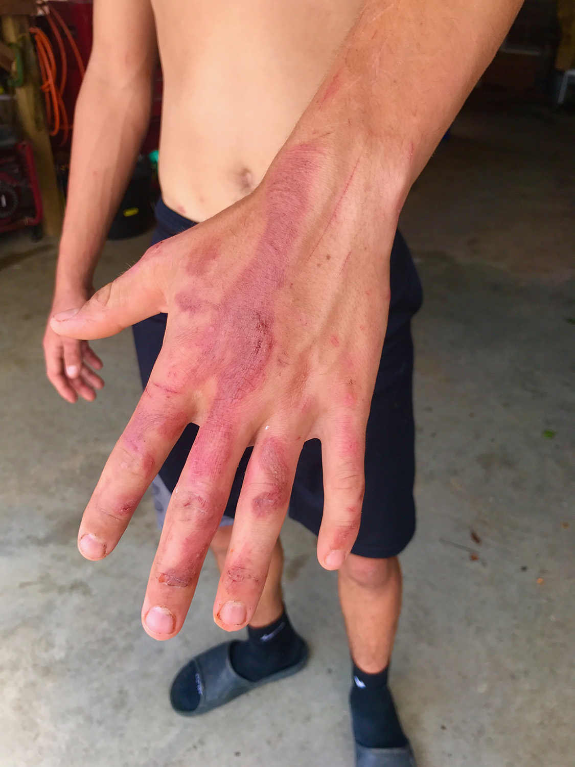 Gage Williams' hand